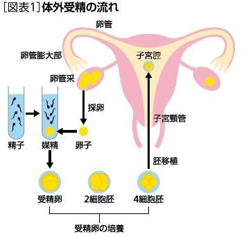 体外受精の流れ